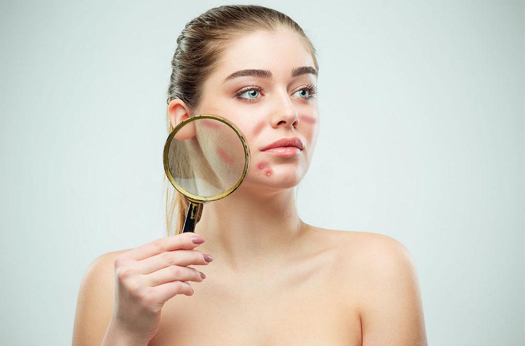 La crema terapéutica ayuda con las lesiones cutáneas producidas por mascarillas
